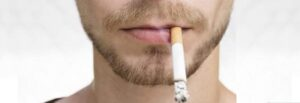 How Smoking Can Cause Hair Loss vivandi trichology center